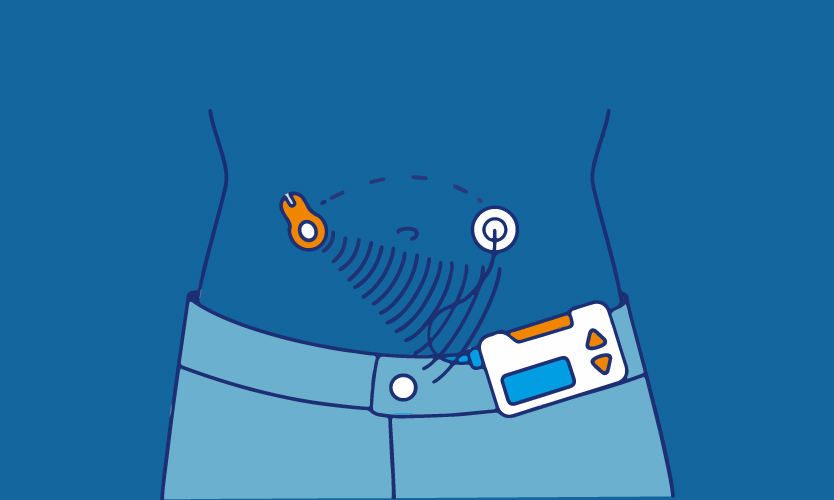 The world's first artificial pancreas